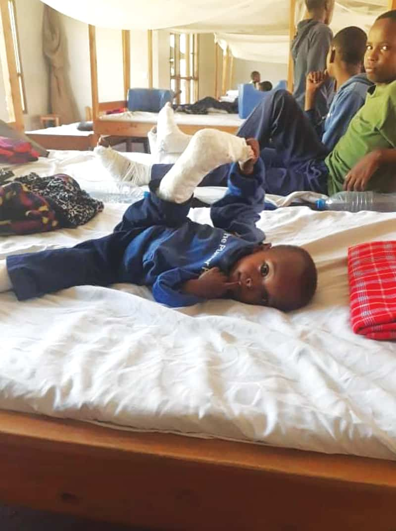 Derrick, un niño de Tanzania, obtuvo fondos del programa Esperanza en las Pezuñas para pagar la cirugía que necesitaba en ambas piernas porque tenía raquitismo. (Cortesía de Samson Gladstone/Tanzania)